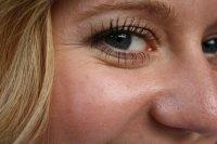 przeszczep tłuszczu pod oczy